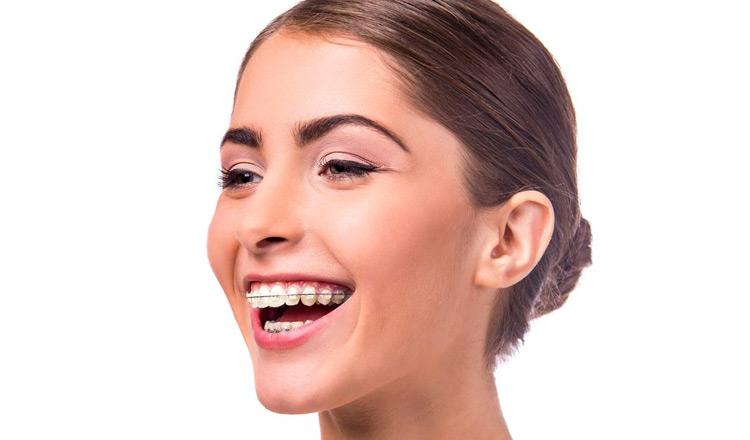 8a44b508e Dentes mais alinhados podem melhorar a saúde bucal – Comfort Clinic