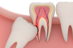 9a7fbfcc7 Como utilizar o creme dental de forma correta – Comfort Clinic